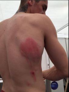 scott redding cidera argentina motogp 2016